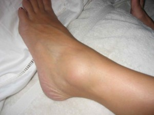 SprainedAnkle2009