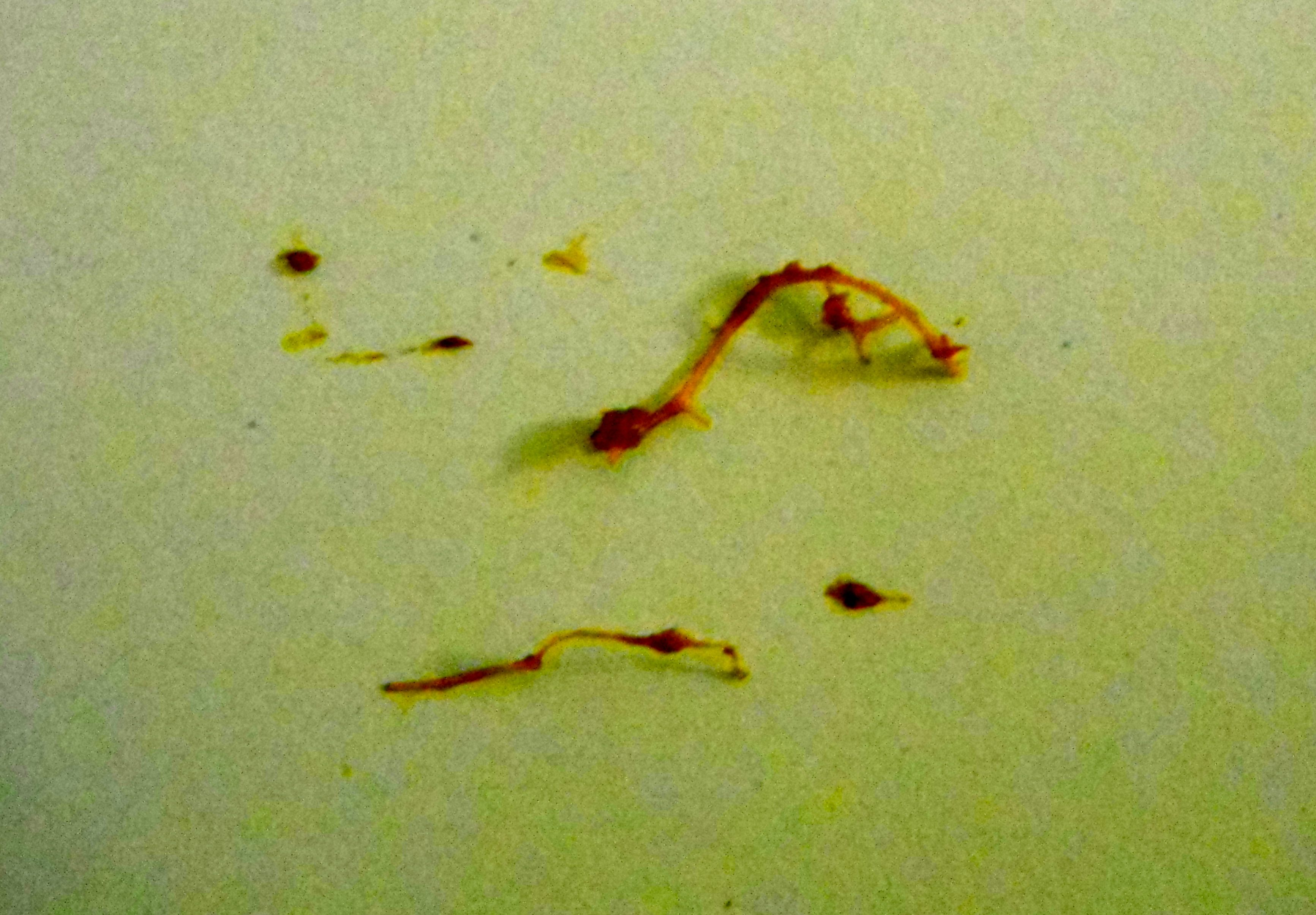What You Might See From a Parasite Cleanse - Elizabeth ...