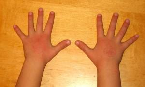 Eczema Hands